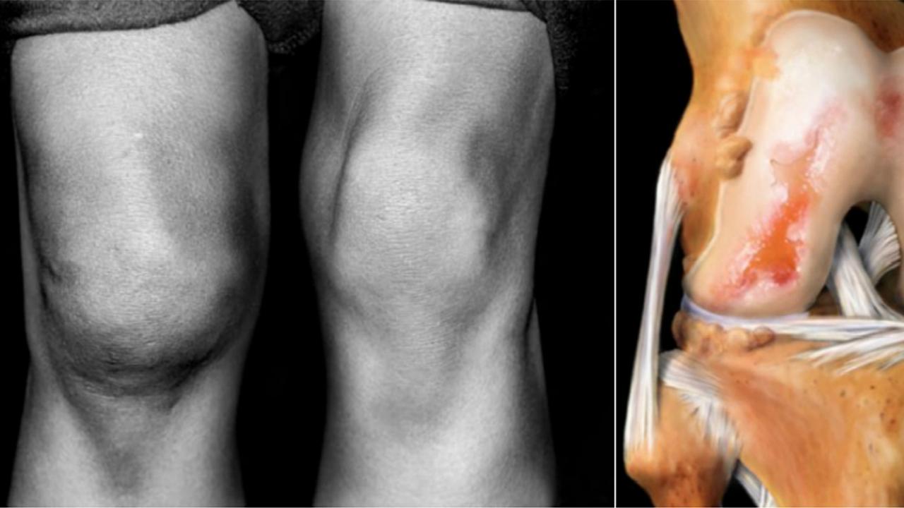 Как сделать так чтобы колени не болели 528