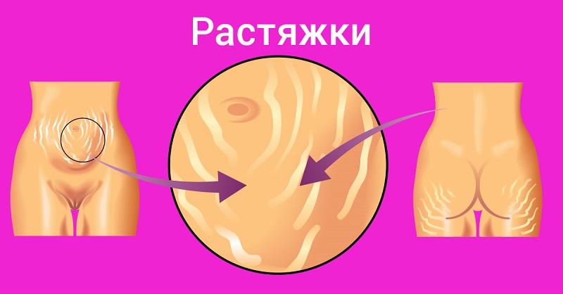 копеечное средство от паразитов