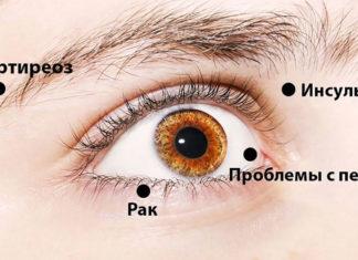8 сигналов, при помощи которых глаза предупреждают о проблемах со здоровьем! Обрати внимание!