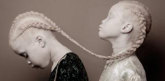 Очаровательные близняшки-альбиносы покорили интернет своей уникальной красотой
