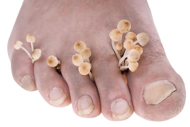 Лишай и грибок на пальцах ног